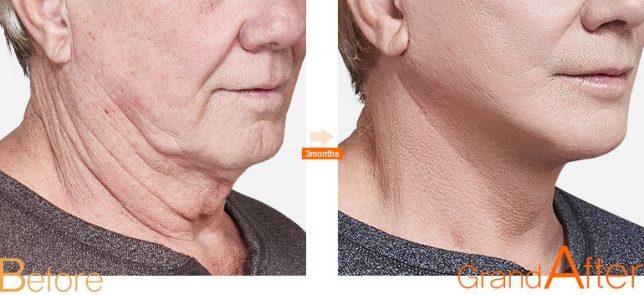 phẫu thuật căng da mặt