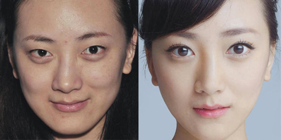 Cosmetic-Surgery-Before-After-Photos-From-Korea