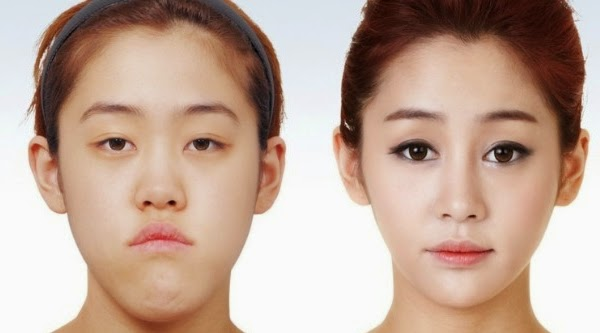 jaw-and-dental-plastic-surgery-1