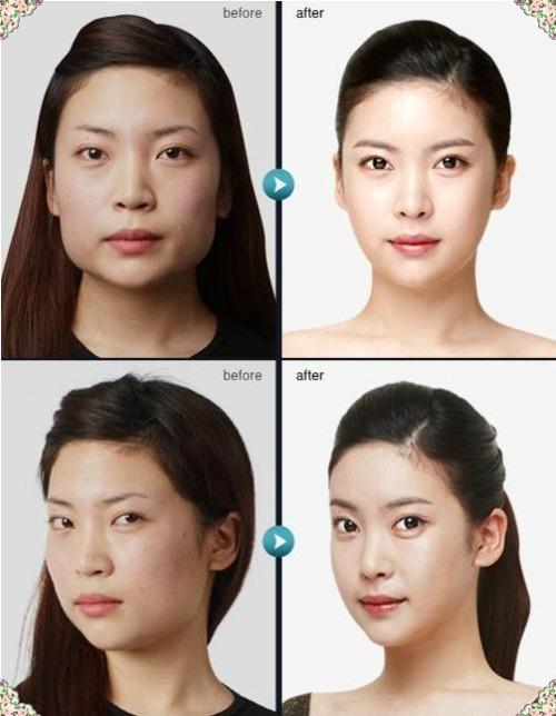 shocking-korean-plastic-surgery-transformations-46