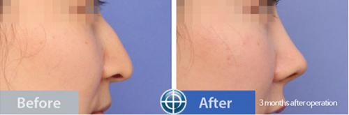 Hump-nose-correction-before-and-after-photo-in-korea
