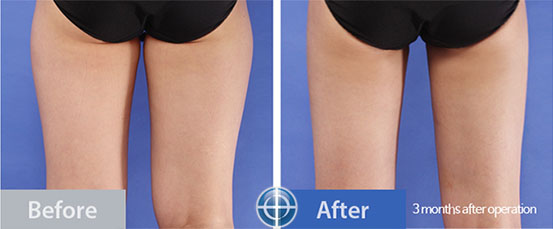 thigh liposuction before and after photo in Korea