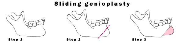 Sliding-Genioplasty