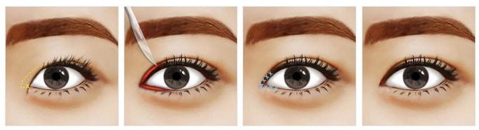 khóe mắt và đuôi mắt